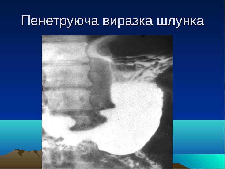 Пенетруюча виразка шлунка