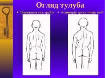 Огляд тулуба Нормальна вісь хребта Асиметрія трикутників талії