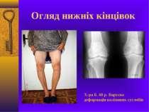 Огляд нижніх кінцівок Х-ра Б. 68 р. Варусна деформація коліннних суглобів