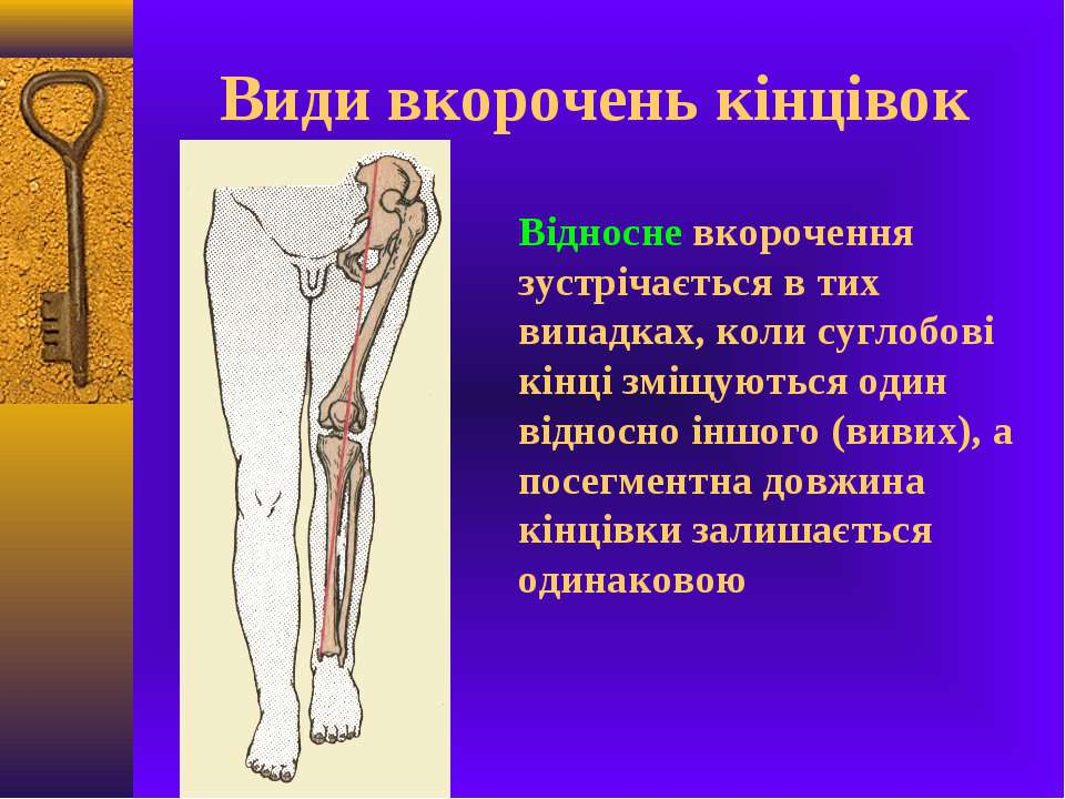 Види вкорочень кінцівок Відносне вкорочення зустрічається в тих випадках, кол...