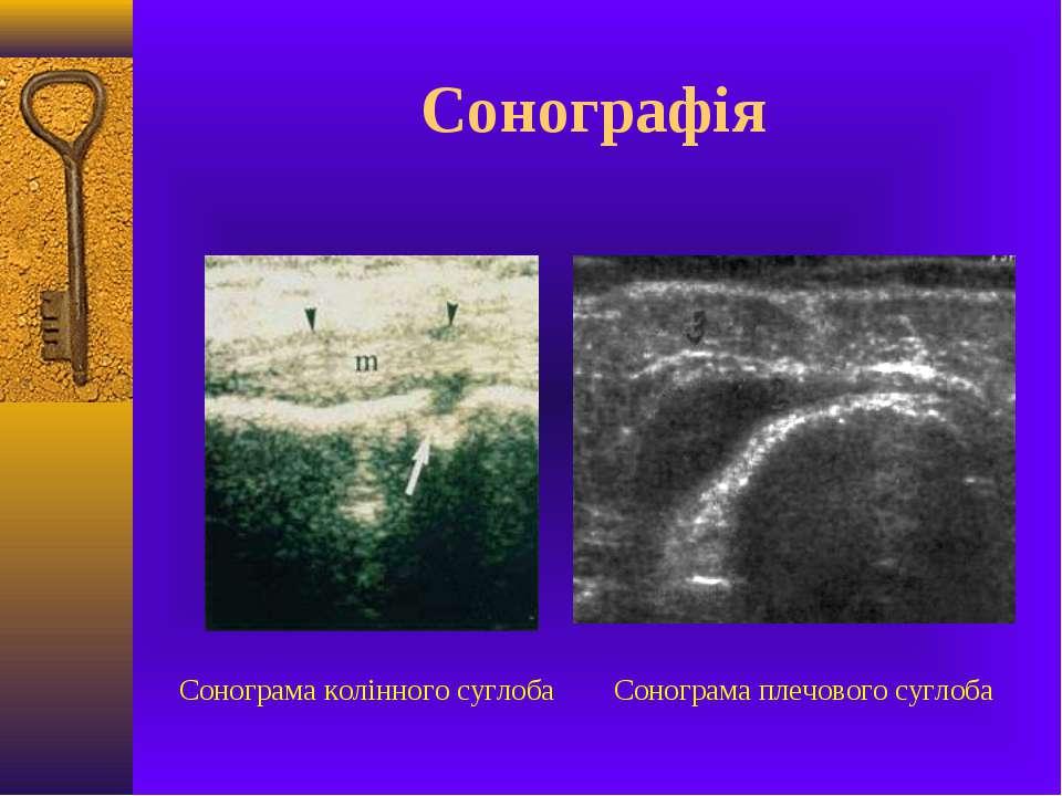 Сонографія Сонограма колінного суглоба Сонограма плечового суглоба
