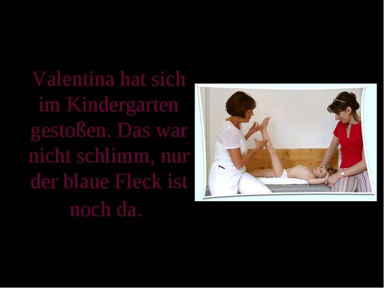 Valentina hat sich im Kindergarten gestoßen. Das war nicht schlimm, nur der b...