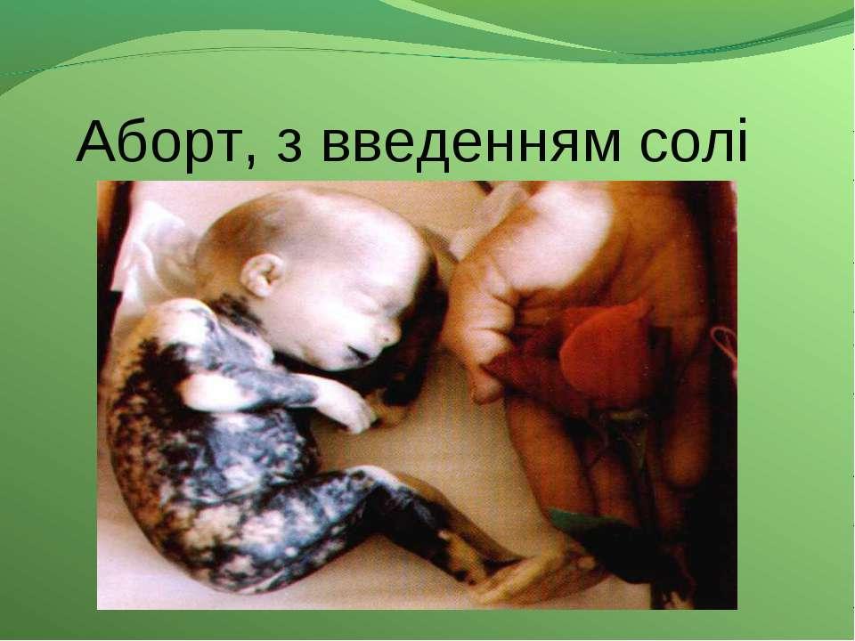 Аборт, з введенням солі