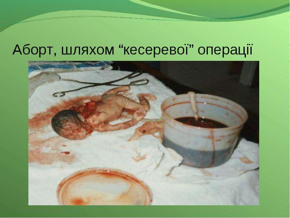 """Аборт, шляхом """"кесеревої"""" операції"""
