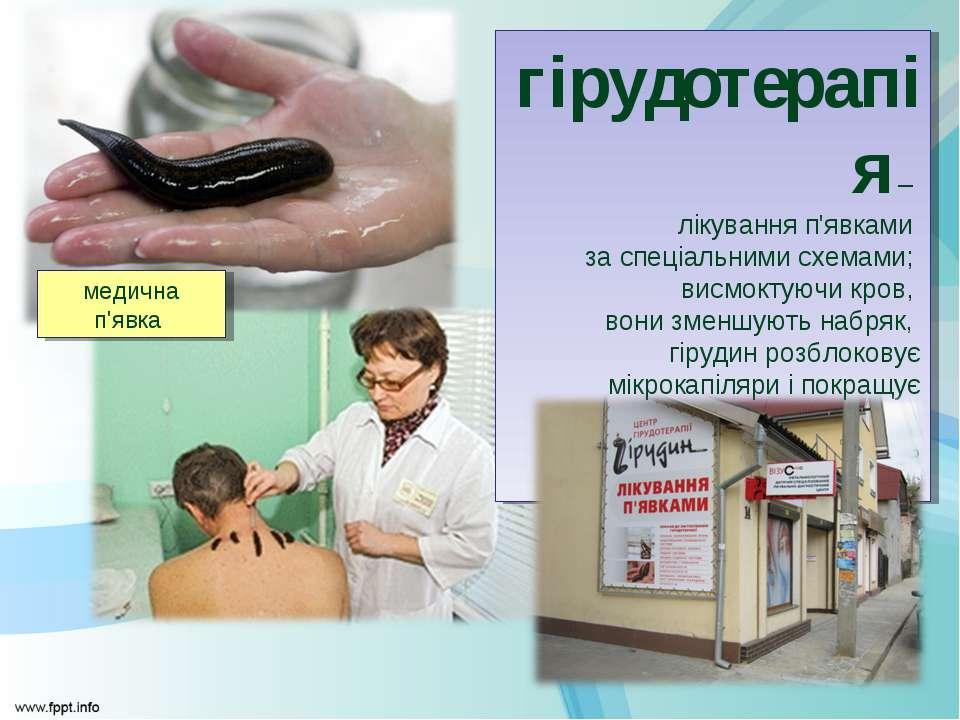 гірудотерапія – лікування п'явками за спеціальними схемами; висмоктуючи кров,...