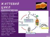 ЖИТТЄВИЙ ЦИКЛ ВОЛОСОГОЛОВА збудник трихоцефальозу довжиною 3-4,5 см; паразиту...