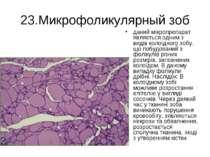 23.Микрофоликулярный зоб даний мікропрепарат являється одним з видів колоїдно...