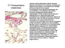 27.Панацинарна емфізема Запальні зміни переважно в більш крупних бронхах (вну...