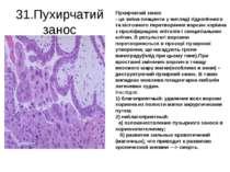31.Пухирчатий занос Пухирчатий занос - це зміна плаценти у вигляді гідропічно...