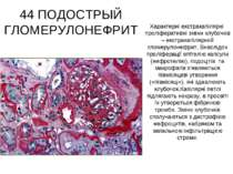 44 ПОДОСТРЫЙ ГЛОМЕРУЛОНЕФРИТ Характерні екстракапілярні проліферативні зміни ...
