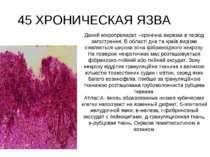45 ХРОНИЧЕСКАЯ ЯЗВА Даний мікропрепарат –хронічна виразка в період загостренн...