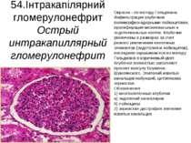 54.Інтракапілярний гломерулонефрит Острый интракапиллярный гломерулонефрит Ок...