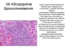 58 Абсцедуюча бронхопневмонія Інфільтрація сегментоядерними лейкоцитами, лімф...