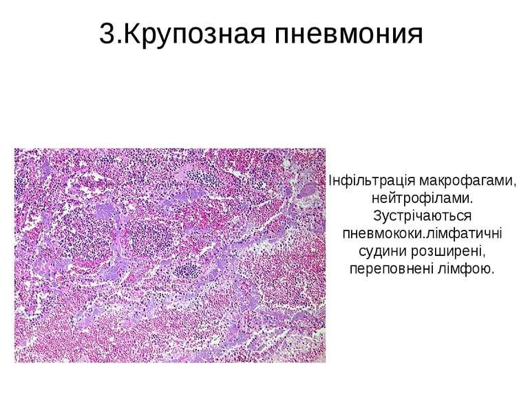 3.Крупозная пневмония Інфільтрація макрофагами, нейтрофілами. Зустрічаються п...