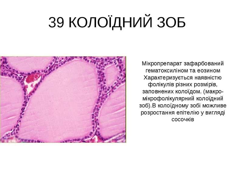 39 КОЛОЇДНИЙ ЗОБ Мікропрепарат зафарбований гематоксиліном та еозином Характе...