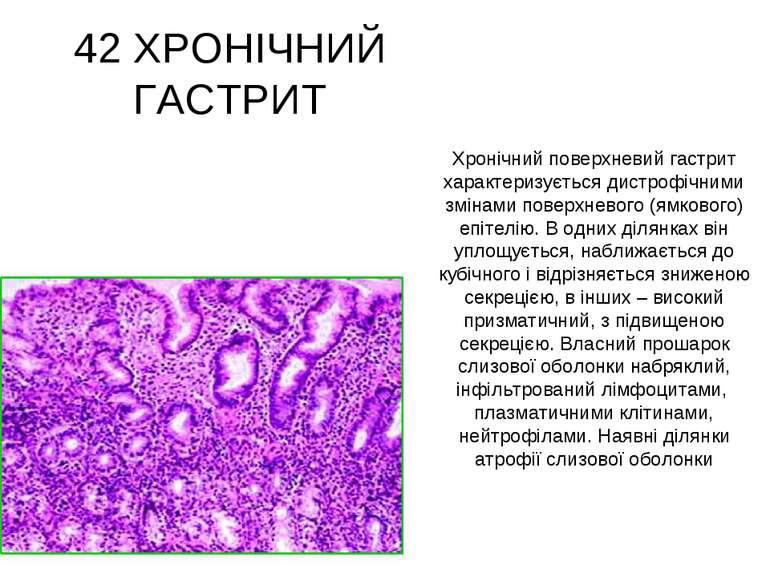 42 ХРОНІЧНИЙ ГАСТРИТ Хронічний поверхневий гастрит характеризується дистрофіч...