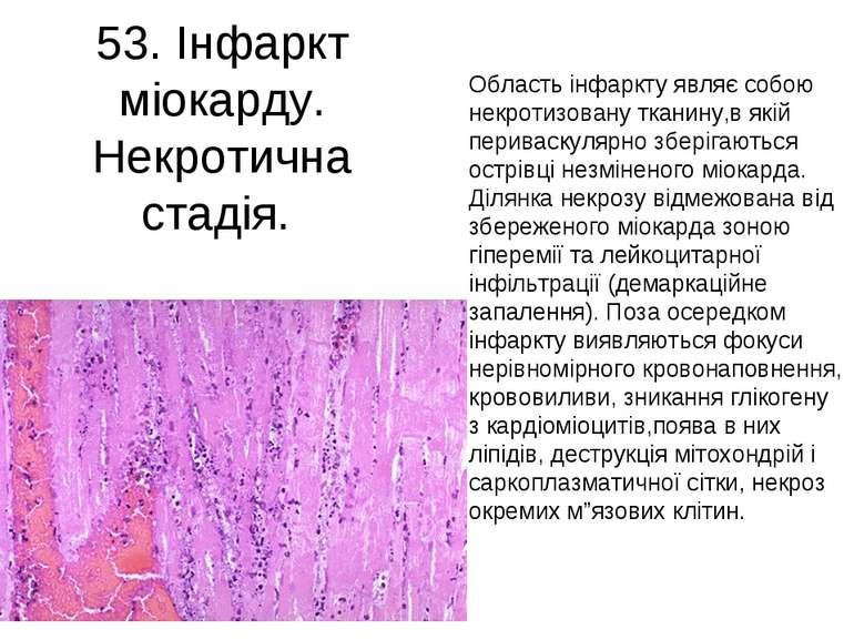 53. Інфаркт міокарду. Некротична стадія. Область інфаркту являє собою некроти...