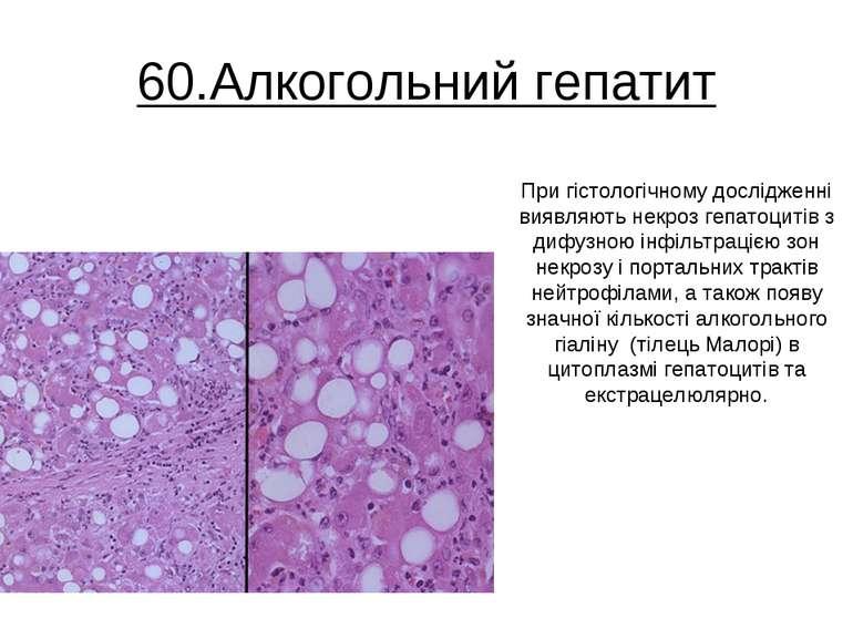60.Алкогольний гепатит При гістологічному дослідженні виявляють некроз гепато...