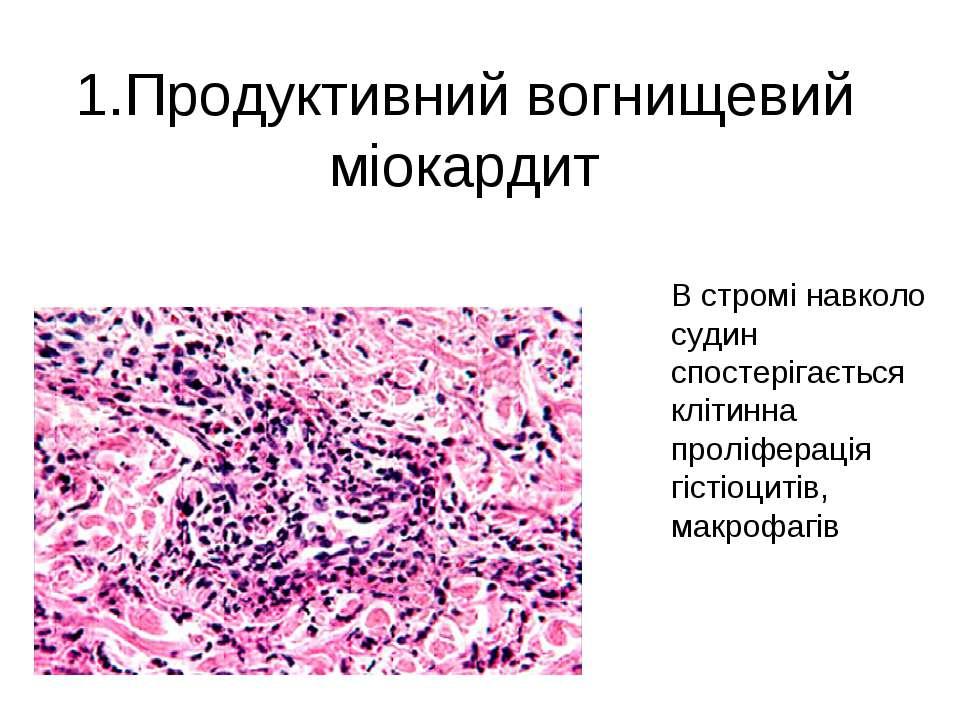 1.Продуктивний вогнищевий міокардит В стромі навколо судин спостерігається кл...