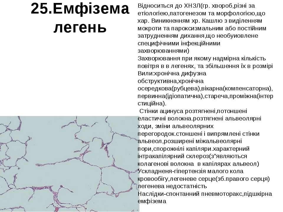 25.Емфізема легень Відноситься до ХНЗЛ(гр. хвороб,різні за етіологіею,патоген...