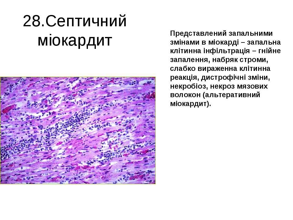 28.Септичний міокардит Представлений запальними змінами в міокарді – запальна...