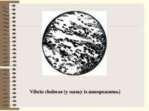 Vibrio cholerae (у мазку із випорожнень)