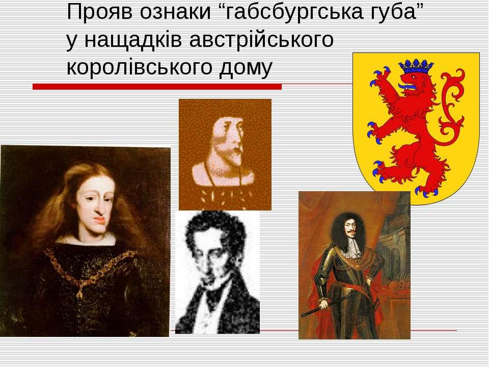 """Прояв ознаки """"габсбургська губа"""" у нащадків австрійського королівського дому"""