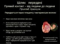 Шлях передачі Прямий контакт – від людини до людини Приклад: Краснуха Вірус к...