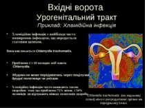 Вхідні ворота Урогенітальний тракт Приклад: Хламідійна інфекція Хламідійна ін...