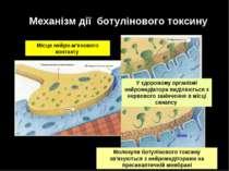 Механізм дії ботулінового токсину Місце нейро-м'язового контакту У здоровому ...