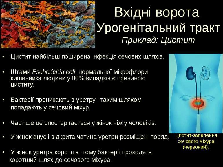 Цистит найбільш поширена інфекція сечових шляхів. Штами Escherichia coli норм...