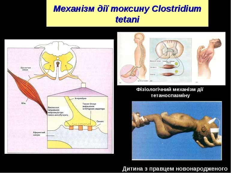 Механізм дії токсину Clostridium tetani Фізіологічний механізм дії тетаноспаз...