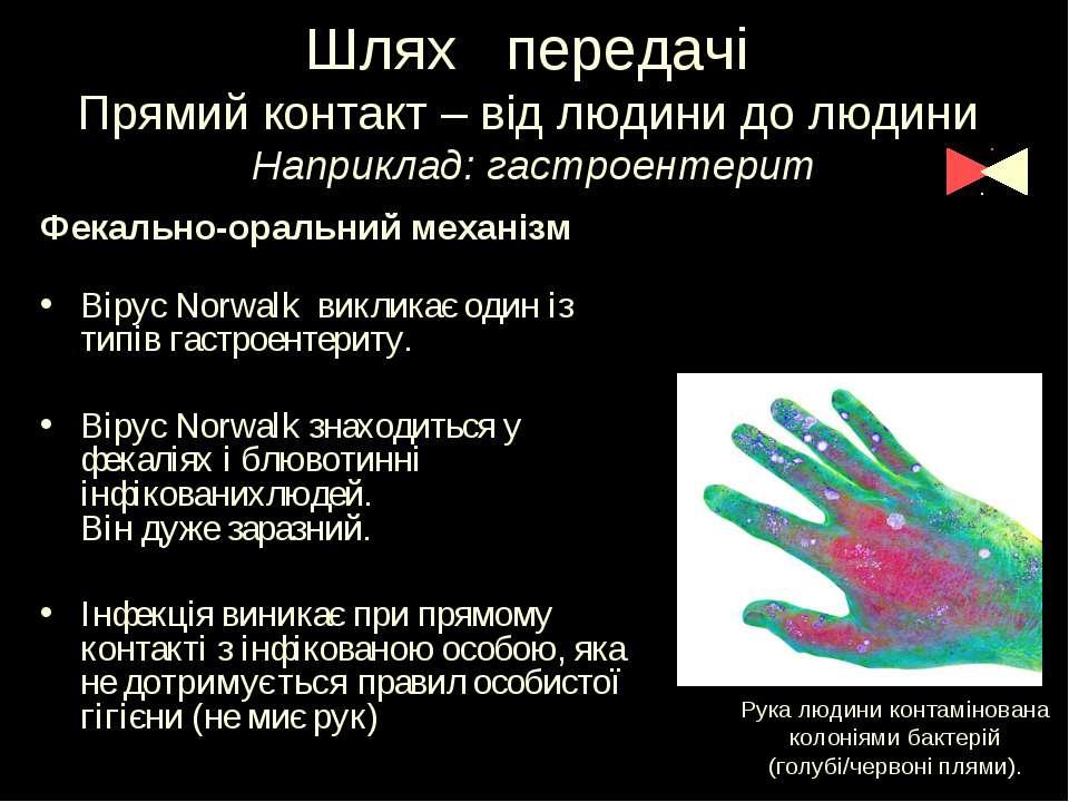Шлях передачі Прямий контакт – від людини до людини Наприклад: гастроентерит ...