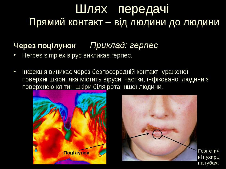 Шлях передачі Прямий контакт – від людини до людини Приклад: герпес Через поц...