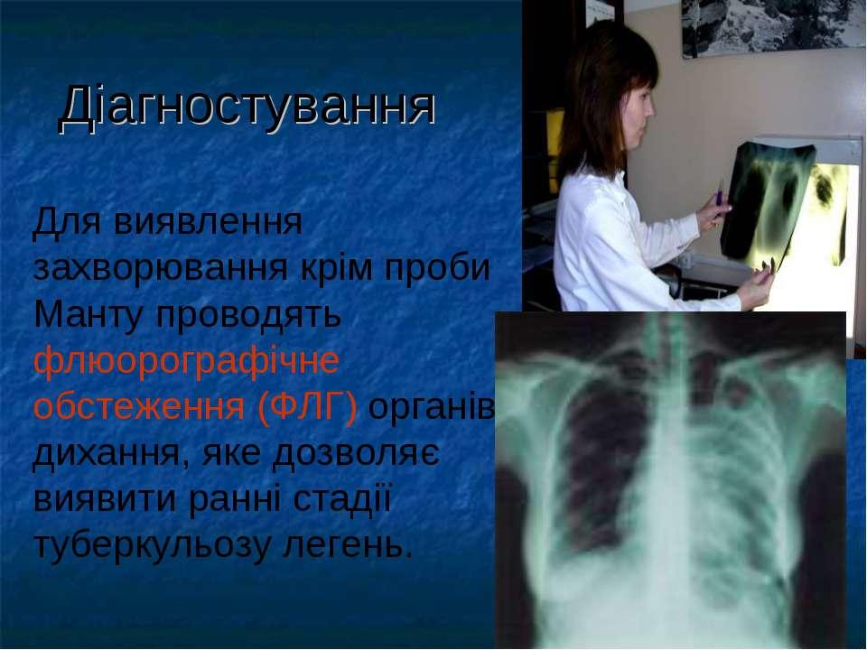 Діагностування Для виявлення захворювання крім проби Манту проводять флюорогр...