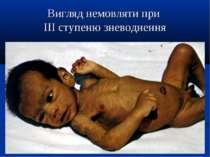 Вигляд немовляти при ІІІ ступеню зневоднення