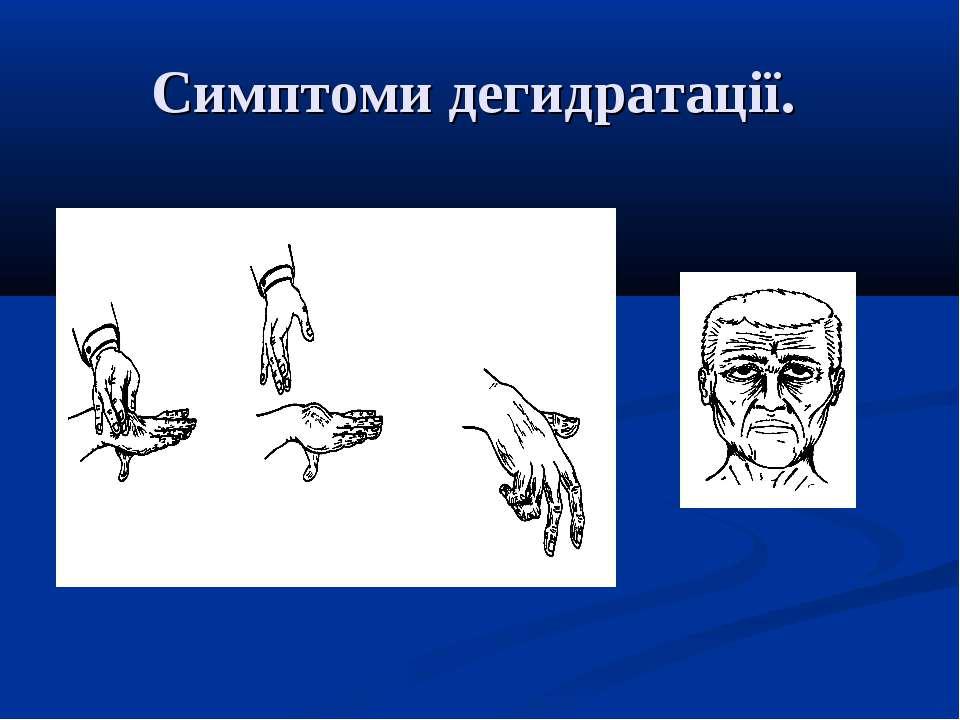 Симптоми дегидратації.