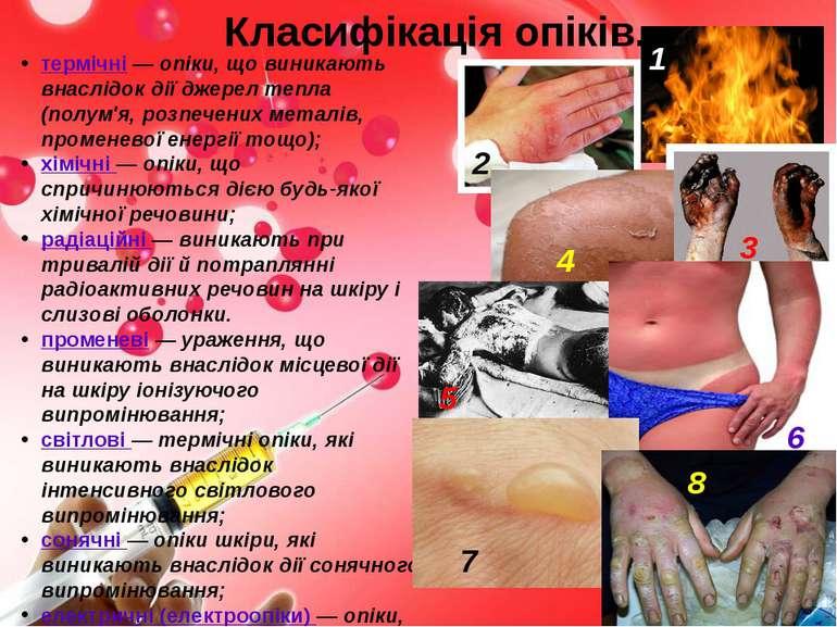 Класифікація опіків. термічні— опіки, що виникають внаслідок дії джерел тепл...