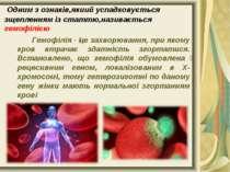 Одним з ознаків,якиий успадковується зщепленням із статтю,називається гемофіл...