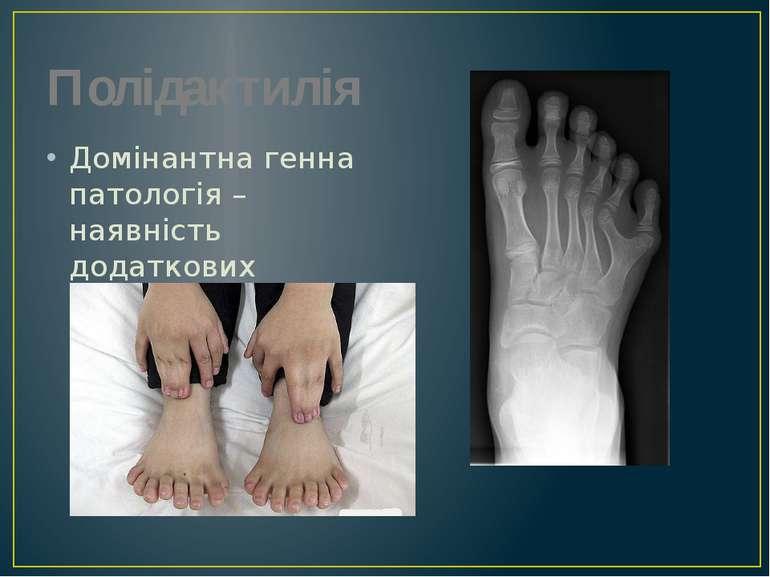 Полідактилія Домінантна генна патологія – наявність додаткових пальців