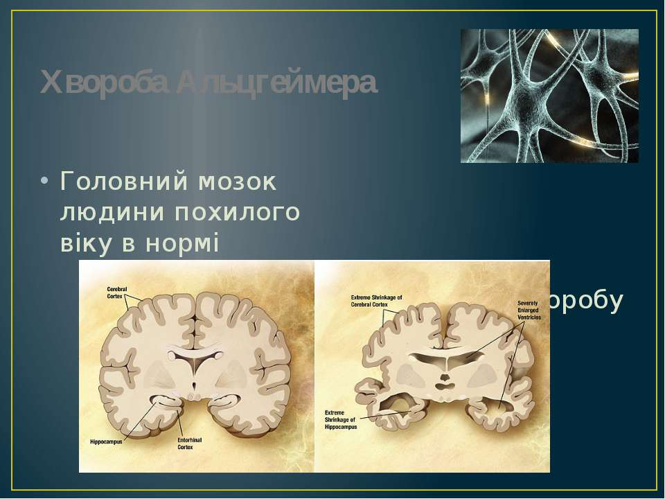Хвороба Альцгеймера Головний мозок людини похилого віку в нормі і хворої на х...