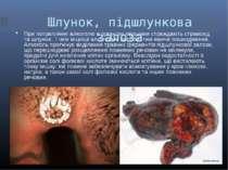 Шлунок, підшлункова залоза При потраплянні алкоголю в організм першими стражд...