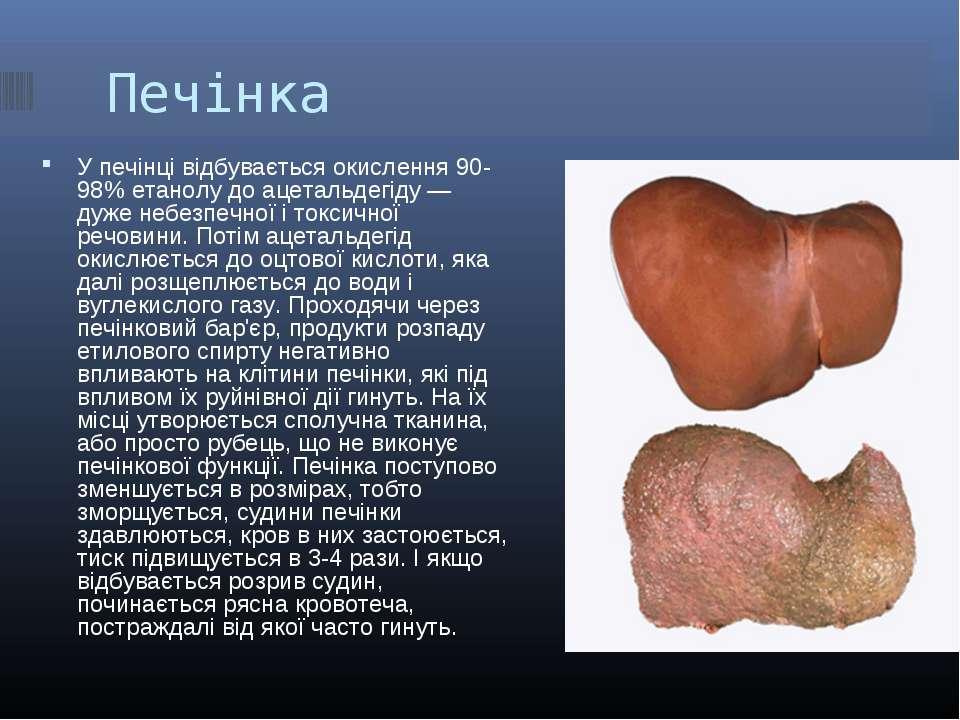 Печінка У печінці відбувається окислення 90-98% етанолу до ацетальдегіду — ду...