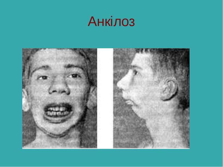 Анкілоз