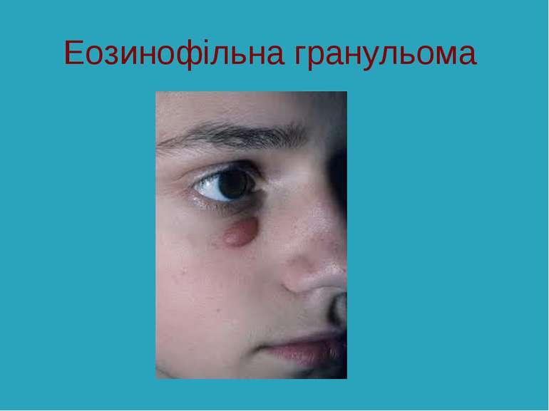 Еозинофільна гранульома