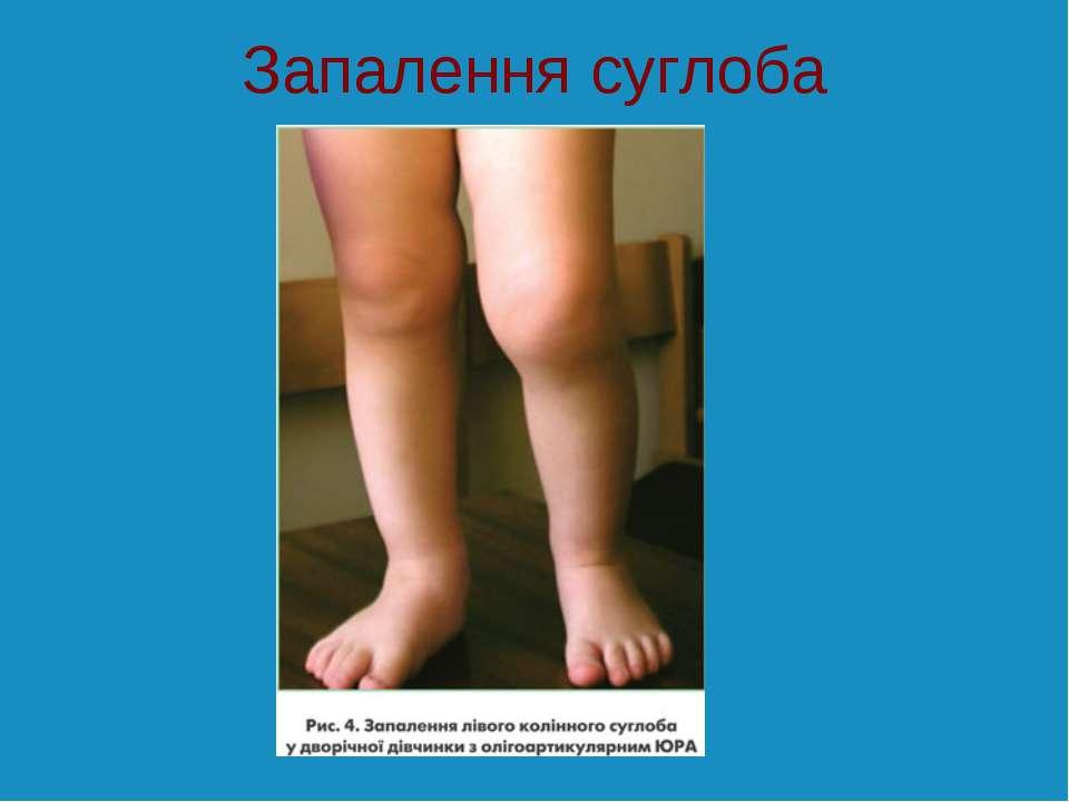 Запалення суглоба