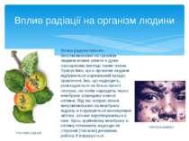 Вплив радіоактивного випромінювання на організм людини можна уявити в дуже сп...