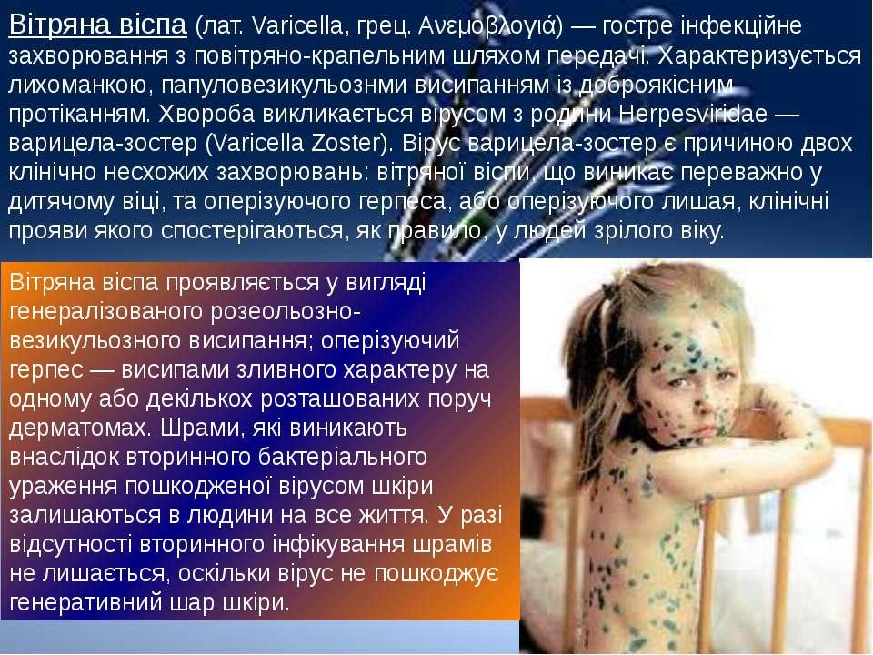 Вітряна віспа (лат. Varicella, грец. Ανεμοβλογιά) — гостре інфекційне захворю...