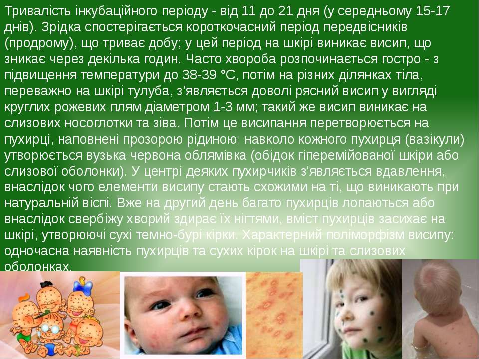 Тривалість інкубаційного періоду - від 11 до 21 дня (у середньому 15-17 днів)...