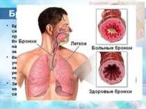 Бронхіт Бронхіт- захворювання дихальної системи , при якому в запальний проце...